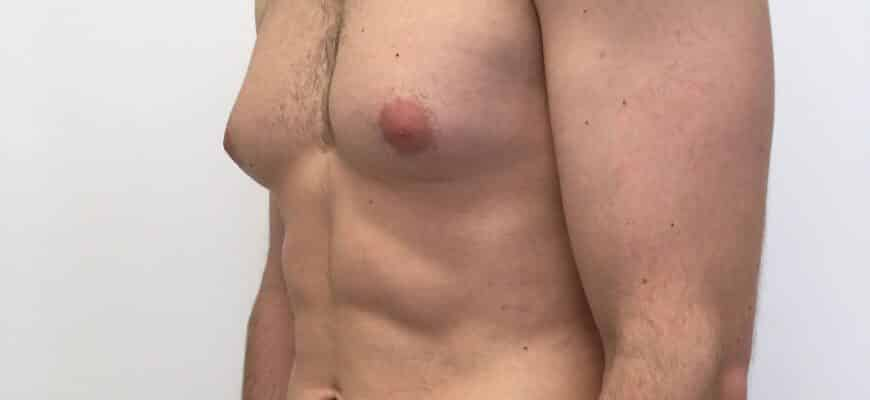 how-hormonal-changes-can-cause-man-boobs-balance-your-hormones-to-prevent-gynecomastia