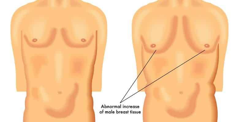 learn-how-to-know-if-you-have-gynecomastia-or-chest-fat-in-5-steps-process