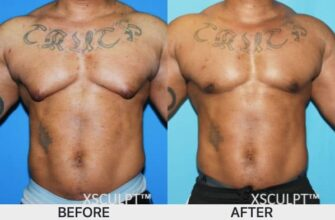 bodybuilding-gyno-from-steroids-how-to-prevent-and-treat-this-condition