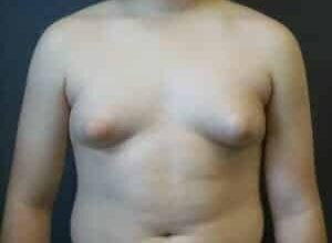 how-to-get-rid-of-gynecomastia-for-good