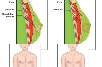 all-you-need-to-know-about-pseudogynecomastia-to-get-rid-of-it